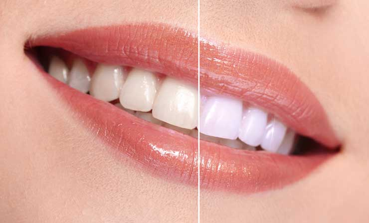 Teeth-whitening facts